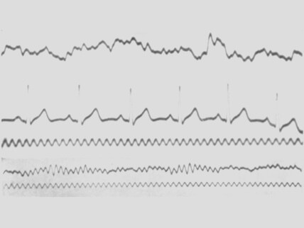 无极娱乐2注册邀请码mage depicting the first ever eeg waves recording
