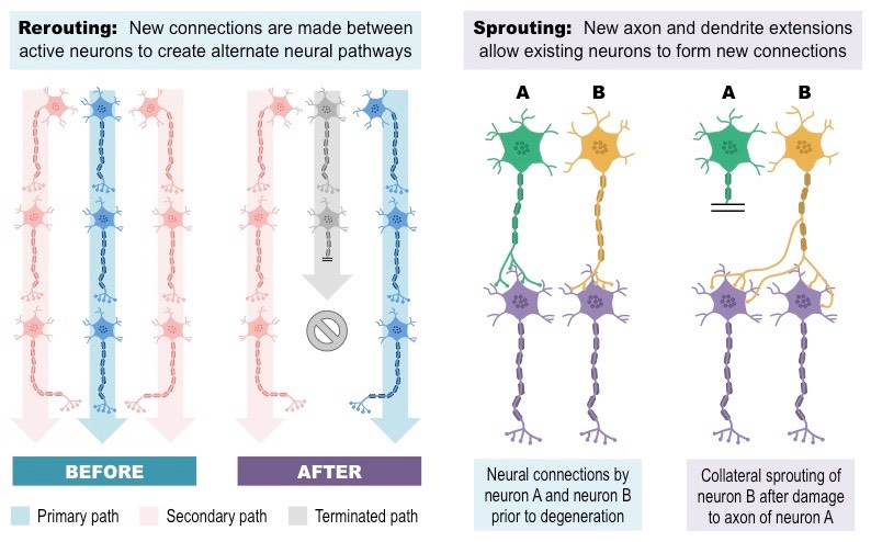 Diagram depicting neuroplasticity in the human brain